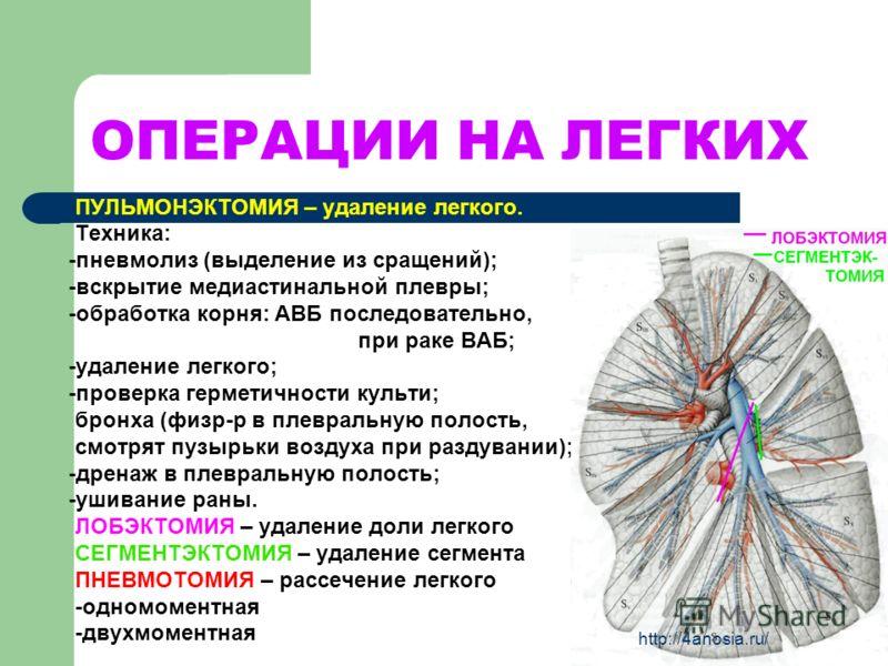 Пульмонэктомия фото