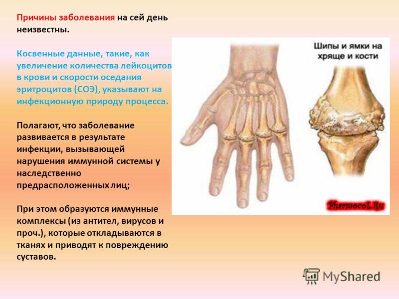 Болезнь суставов рак