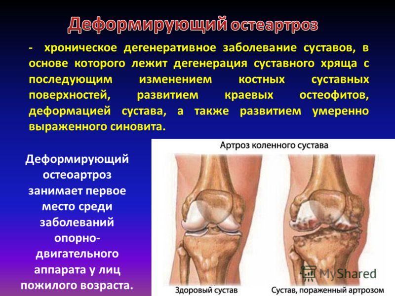 - хроническое дегенеративное заболевание суставов, в основе которого лежит дегенерация суставного хряща с последующим изменением костных суставных поверхностей, развитием краевых остеофитов, деформацией сустава, а также развитием умеренно выраженного