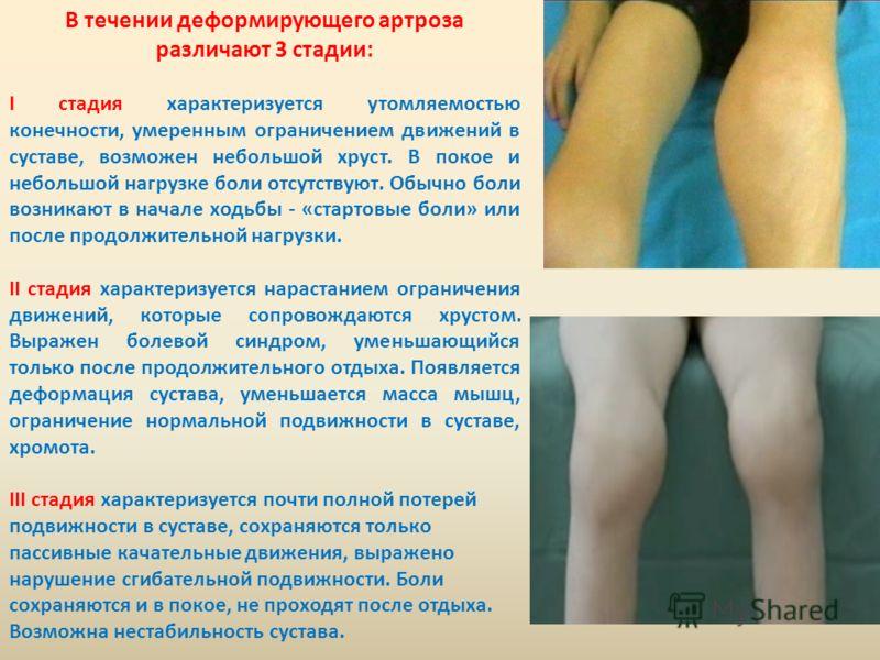 В течении деформирующего артроза различают 3 стадии: I стадия характеризуется утомляемостью конечности, умеренным ограничением движений в суставе, возможен небольшой хруст. В покое и небольшой нагрузке боли отсутствуют. Обычно боли возникают в начале