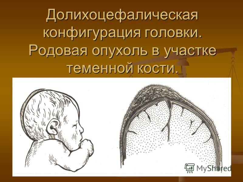 Долихоцефалическая конфигурация головки. Родовая опухоль в участке теменной кости.
