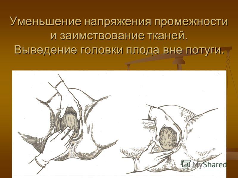 Уменьшение напряжения промежности и заимствование тканей. Выведение головки плода вне потуги.