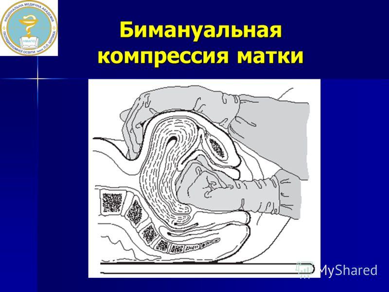 Бимануальная компрессия матки