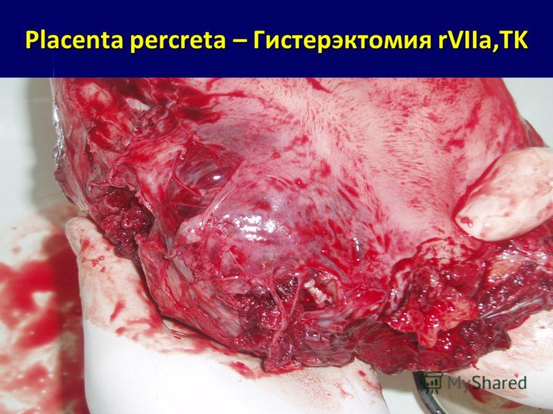 Placenta percreta – Гистерэктомия rVIIa,TK