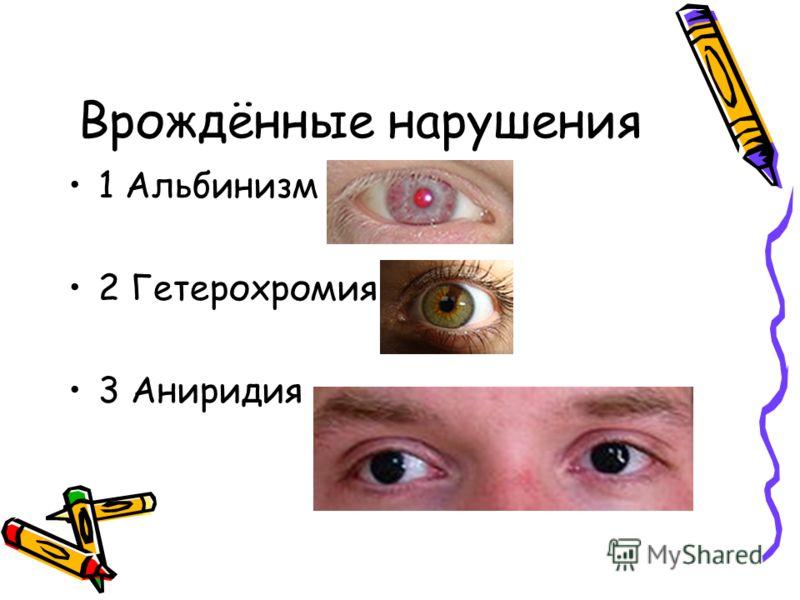 Врождённые нарушения 1 Альбинизм 2 Гетерохромия 3 Аниридия