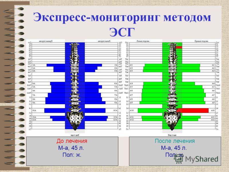 Экспресс-мониторинг методом ЭСГ До лечения М-а, 45 л. Пол: ж. После лечения М-а, 45 л. Пол: ж.
