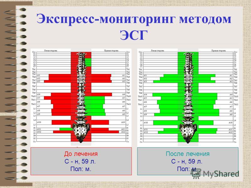 Экспресс-мониторинг методом ЭСГ До лечения С - н, 59 л. Пол: м. После лечения С - н, 59 л. Пол: м.