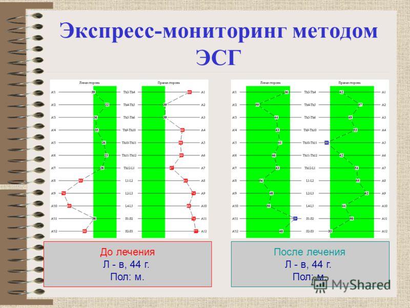 Экспресс-мониторинг методом ЭСГ До лечения Л - в, 44 г. Пол: м. После лечения Л - в, 44 г. Пол: м.