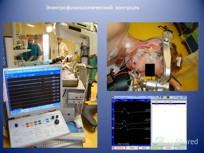 Электрофизиологический контроль