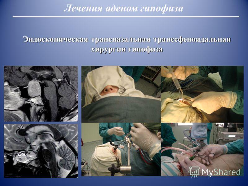 Эндоскопическая трансназальная транссфеноидальная хирургия гипофиза Лечения аденом гипофиза