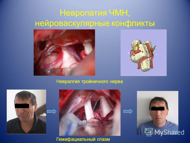 Невропатия ЧМН, нейроваскулярные конфликты Невралгия тройничного нерва Гемифациальный спазм