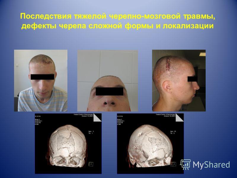 Последствия тяжелой черепно-мозговой травмы, дефекты черепа сложной формы и локализации