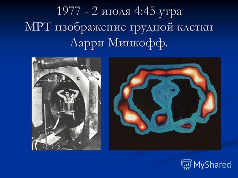 1977 - 2 июля 4:45 утра МРТ изображение грудной клетки Ларри Минкофф.