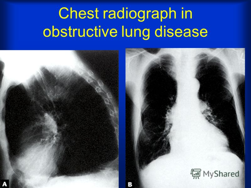 Chest radiograph in obstructive lung disease