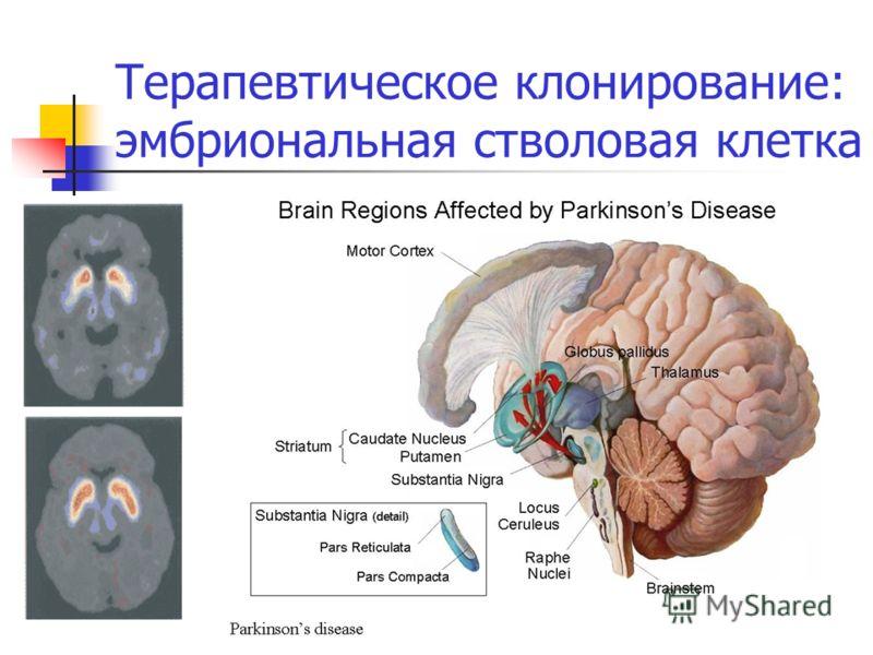 Терапевтическое клонирование: эмбриональная стволовая клетка