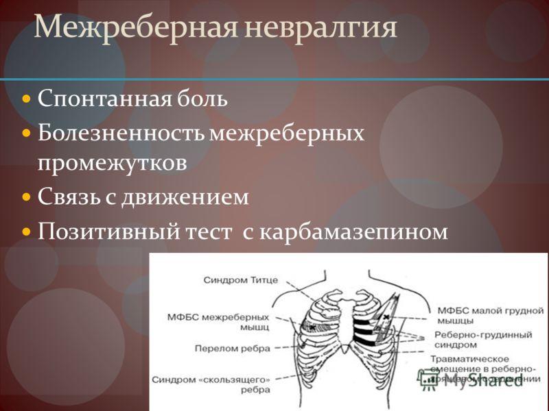 Межреберная невралгия Спонтанная боль Болезненность межреберных промежутков Связь с движением Позитивный тест с карбамазепином