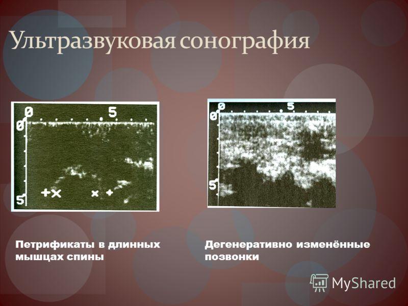 Ультразвуковая сонография Петрификаты в длинных мышцах спины Дегенеративно изменённые позвонки