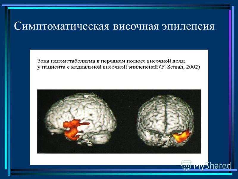 Симптоматическая височная эпилепсия