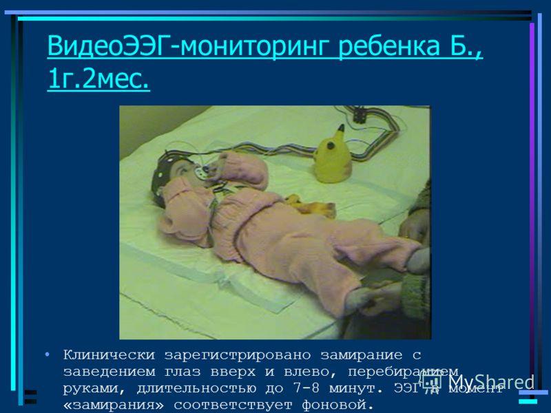 ВидеоЭЭГ-мониторинг ребенка Б., 1г.2мес. Клинически зарегистрировано замирание с заведением глаз вверх и влево, перебиранием руками, длительностью до 7-8 минут. ЭЭГ в момент «замирания» соответствует фоновой.