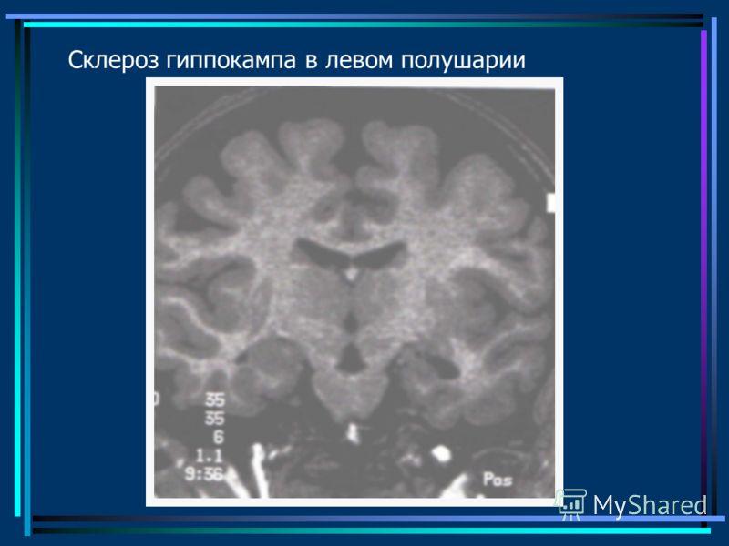 Склероз гиппокампа в левом полушарии