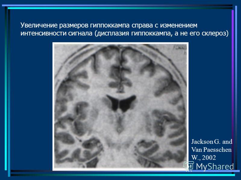 Увеличение размеров гиппоккампа справа с изменением интенсивности сигнала (дисплазия гиппоккампа, а не его склероз) Jackson G. and Van Paesschen W., 2002