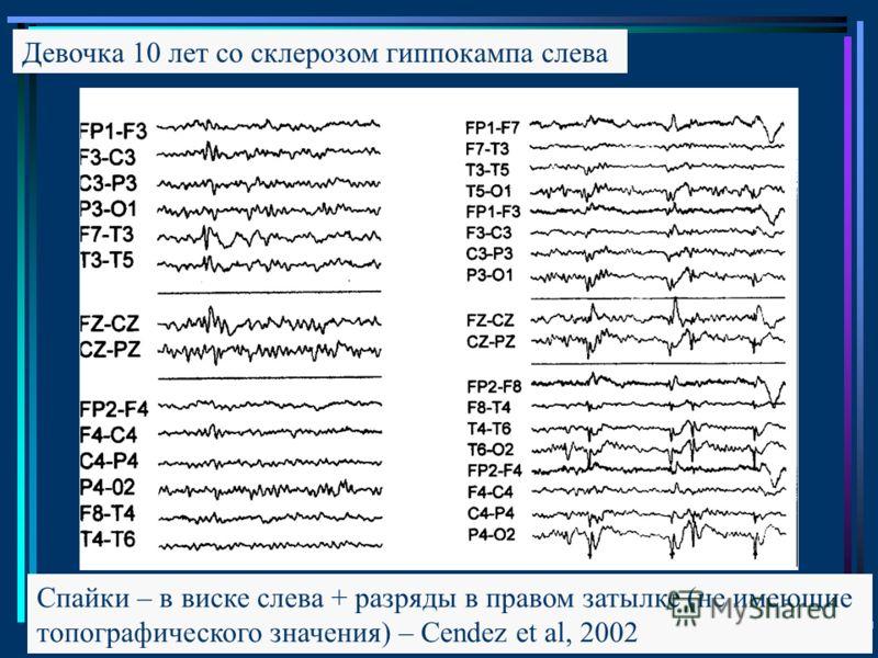 Девочка 10 лет со склерозом гиппокампа слева Спайки – в виске слева + разряды в правом затылке (не имеющие топографического значения) – Cendez et al, 2002