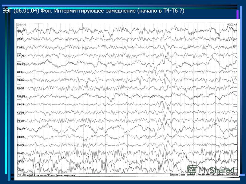 ЭЭГ (06.01.04) Фон. Интермиттирующее замедление (начало в Т4-Т6 ?)