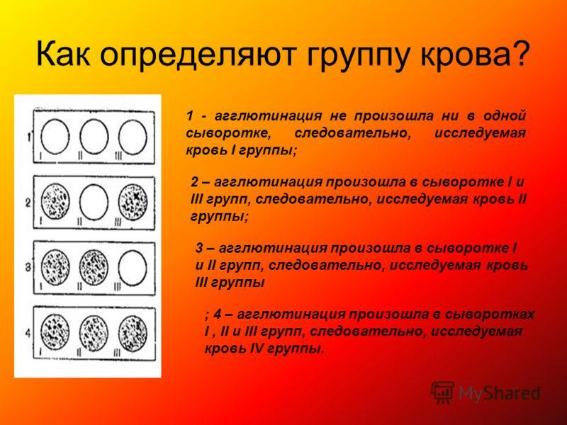 Как определяют группу крова? 1 - агглютинация не произошла ни в одной сыворотке, следовательно, исследуемая кровь I группы; 2 – агглютинация произошла в сыворотке I и III групп, следовательно, исследуемая кровь II группы; 3 – агглютинация произошла в