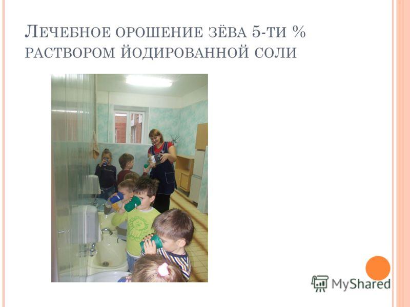 Л ЕЧЕБНОЕ ОРОШЕНИЕ ЗЁВА 5- ТИ % РАСТВОРОМ ЙОДИРОВАННОЙ СОЛИ