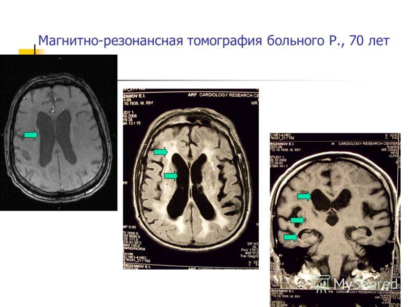 Магнитно-резонансная томография больного Р., 70 лет