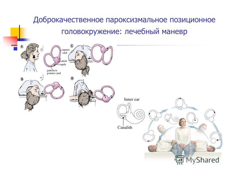 Доброкачественное пароксизмальное позиционное головокружение: лечебный маневр