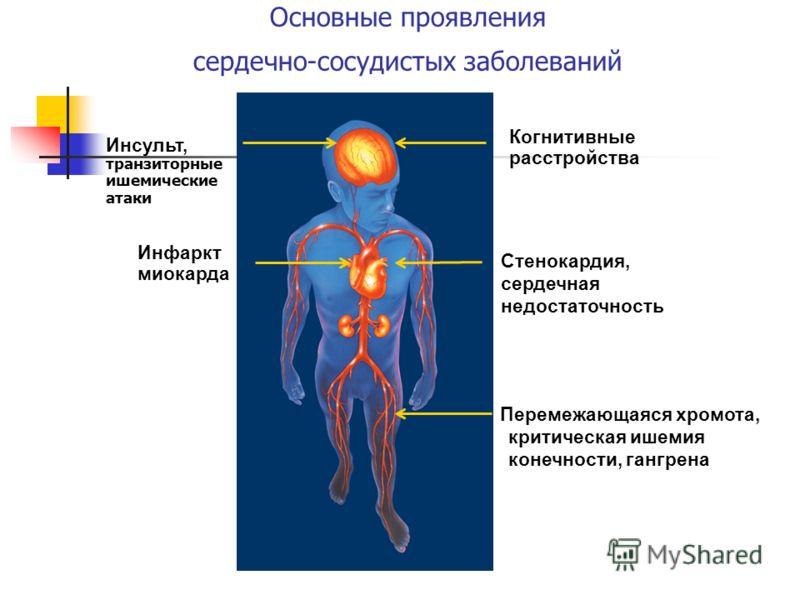 Основные проявления сердечно-сосудистых заболеваний Когнитивные расстройства Стенокардия, сердечная недостаточность Инсульт, транзиторные ишемические атаки Инфаркт миокарда Перемежающаяся хромота, критическая ишемия конечности, гангрена
