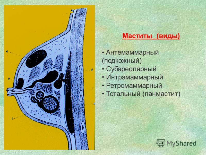 Маститы (виды) Антемаммарный (подкожный) Субареолярный Интрамаммарный Ретромаммарный Тотальный (панмастит)