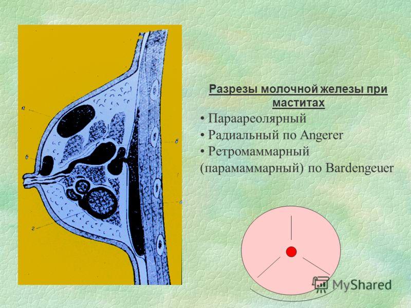 Разрезы молочной железы при маститах Параареолярный Радиальный по Angerer Ретромаммарный (парамаммарный) по Bardengeuer