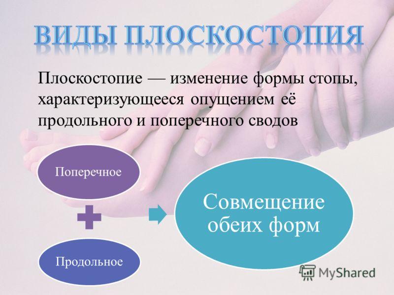 Плоскостопие изменение формы стопы, характеризующееся опущением её продольного и поперечного сводов Поперечное Продольное Совмещение обеих форм