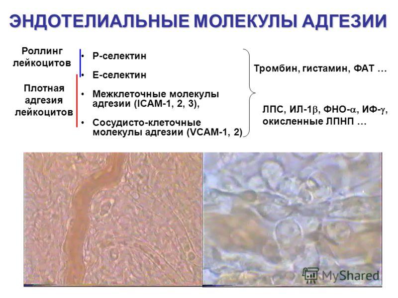 ЭНДОТЕЛИАЛЬНЫЕ МОЛЕКУЛЫ АДГЕЗИИ P-селектин Е-селектин Межклеточные молекулы адгезии (ICAM-1, 2, 3), Сосудисто-клеточные молекулы адгезии (VCAM-1, 2) Тромбин, гистамин, ФАТ … ЛПС, ИЛ-1, ФНО-, ИФ-, окисленные ЛПНП … Роллинг лейкоцитов Плотная адгезия л