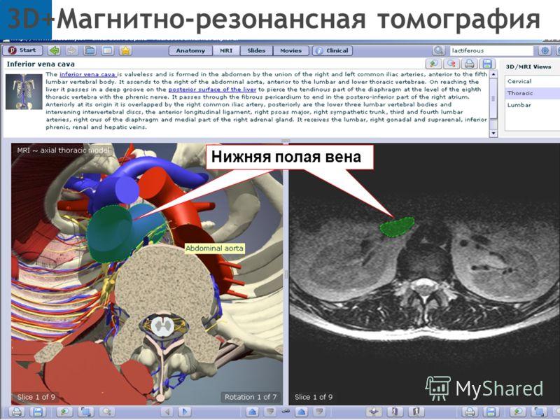3D+Магнитно-резонансная томография Полая нижняя венаНижняя полая вена