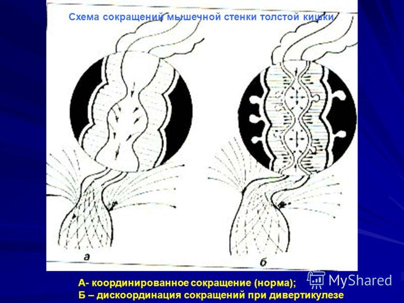 А- координированное сокращение (норма); Б – дискоординация сокращений при дивертикулезе Схема сокращений мышечной стенки толстой кишки