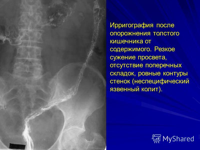 Ирригография после опорожнения толстого кишечника от содержимого. Резкое сужение просвета, отсутствие поперечных складок, ровные контуры стенок (неспецифический язвенный колит).