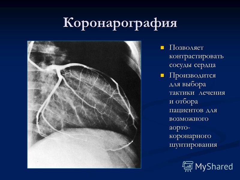 Коронарография Позволяет контрастировать сосуды сердца Производится для выбора тактики лечения и отбора пациентов для возможного аорто- коронарного шунтирования