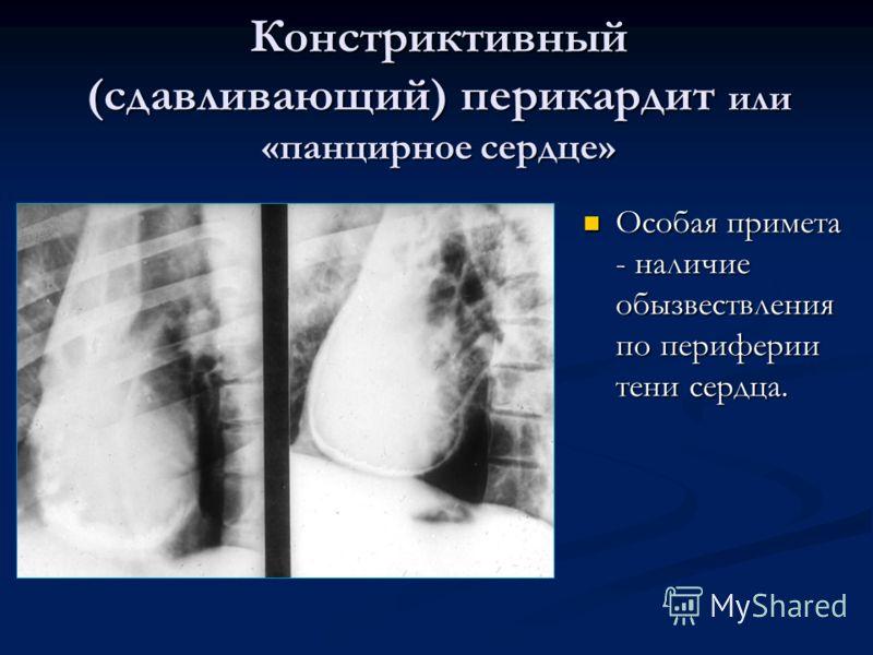 Констриктивный (сдавливающий) перикардит или «панцирное сердце» Особая примета - наличие обызвествления по периферии тени сердца.