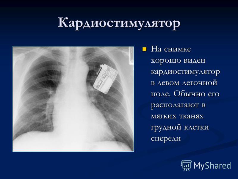 Кардиостимулятор На снимке хорошо виден кардиостимулятор в левом легочной поле. Обычно его располагают в мягких тканях грудной клетки спереди