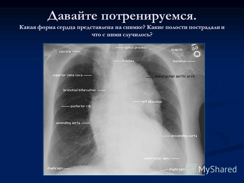Давайте потренируемся. Какая форма сердца представлена на снимке? Какие полости пострадали и что с ними случилось?