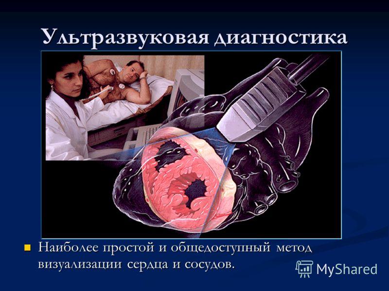 Ультразвуковая диагностика Наиболее простой и общедоступный метод визуализации сердца и сосудов.