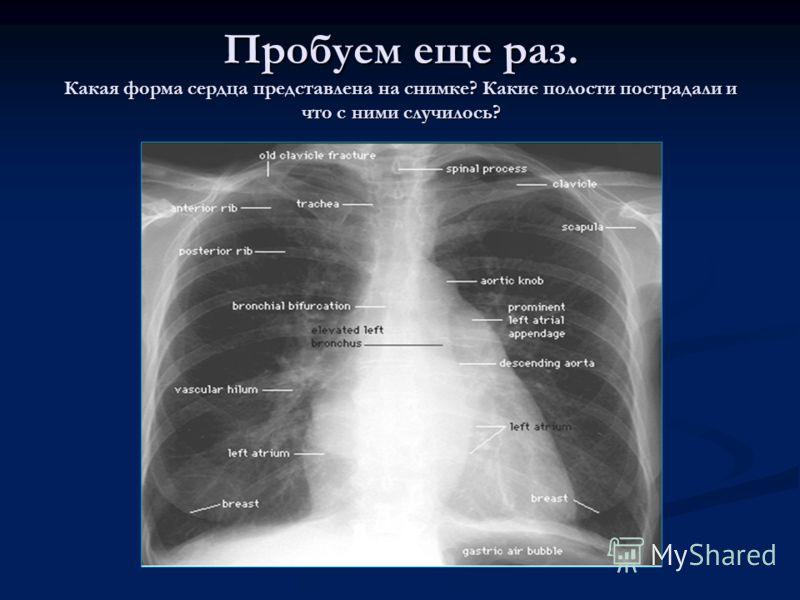 Пробуем еще раз. Какая форма сердца представлена на снимке? Какие полости пострадали и что с ними случилось?