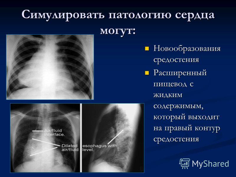 Симулировать патологию сердца могут: Новообразования средостения Расширенный пищевод с жидким содержимым, который выходит на правый контур средостения