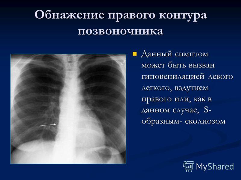 Обнажение правого контура позвоночника Данный симптом может быть вызван гиповениляцией левого легкого, вздутием правого или, как в данном случае, S- образным- сколиозом