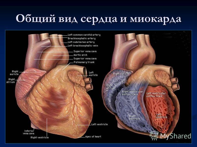 Общий вид сердца и миокарда