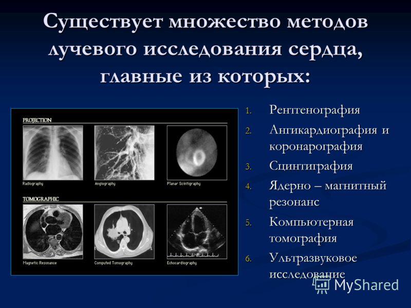 Существует множество методов лучевого исследования сердца, главные из которых: 1. Рентгенография 2. Ангикардиография и коронарография 3. Сцинтиграфия 4. Ядерно – магнитный резонанс 5. Компьютерная томография 6. Ультразвуковое исследование