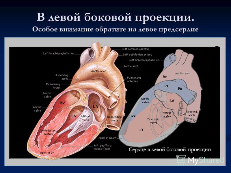 В левой боковой проекции. Особое внимание обратите на левое предсердие Сердце в левой боковой проекции